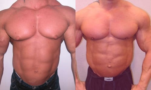 Gyno From Steroids