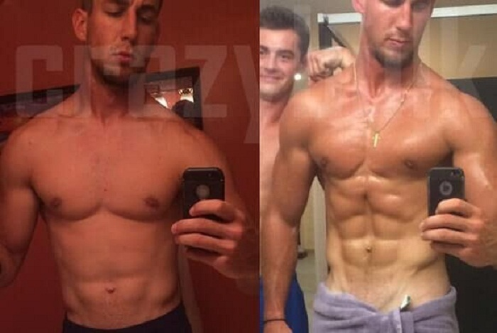 anadrole before and after results