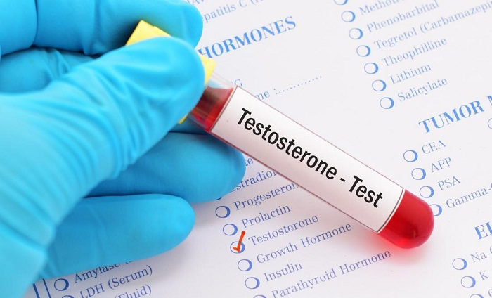 testosterone-level-test