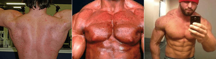 Stanozolol Cycle Side Effects