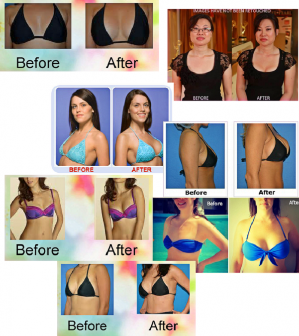 Breast Actives Before After Picture